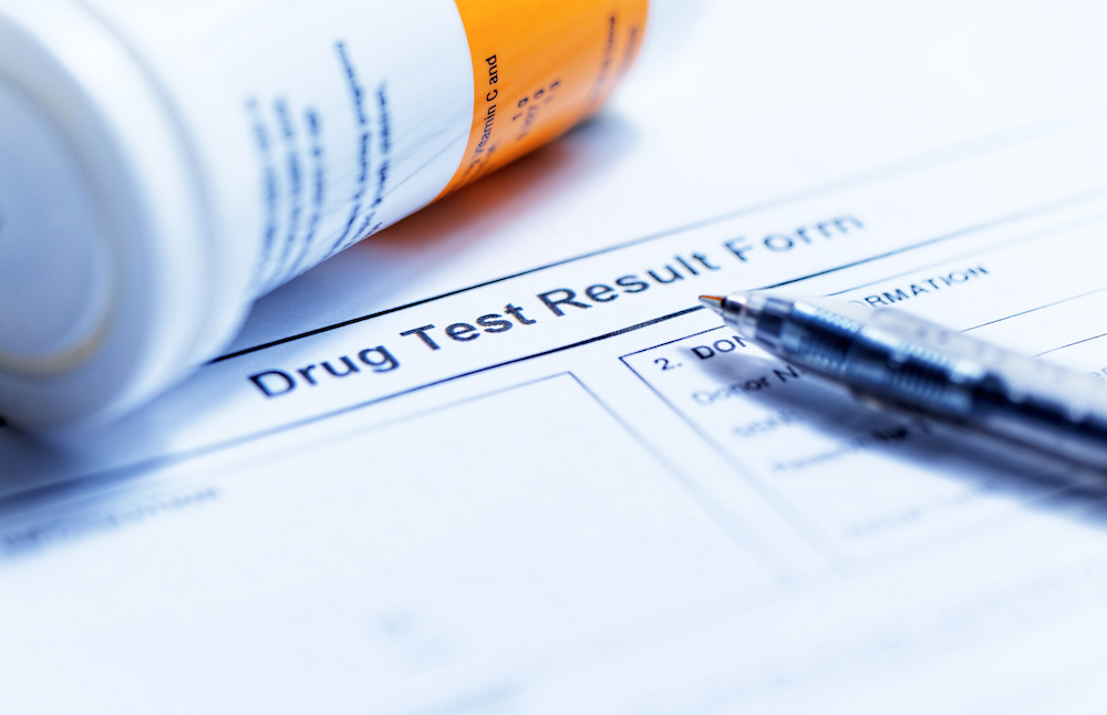 Should Small Business Owners Drug Test Employees?